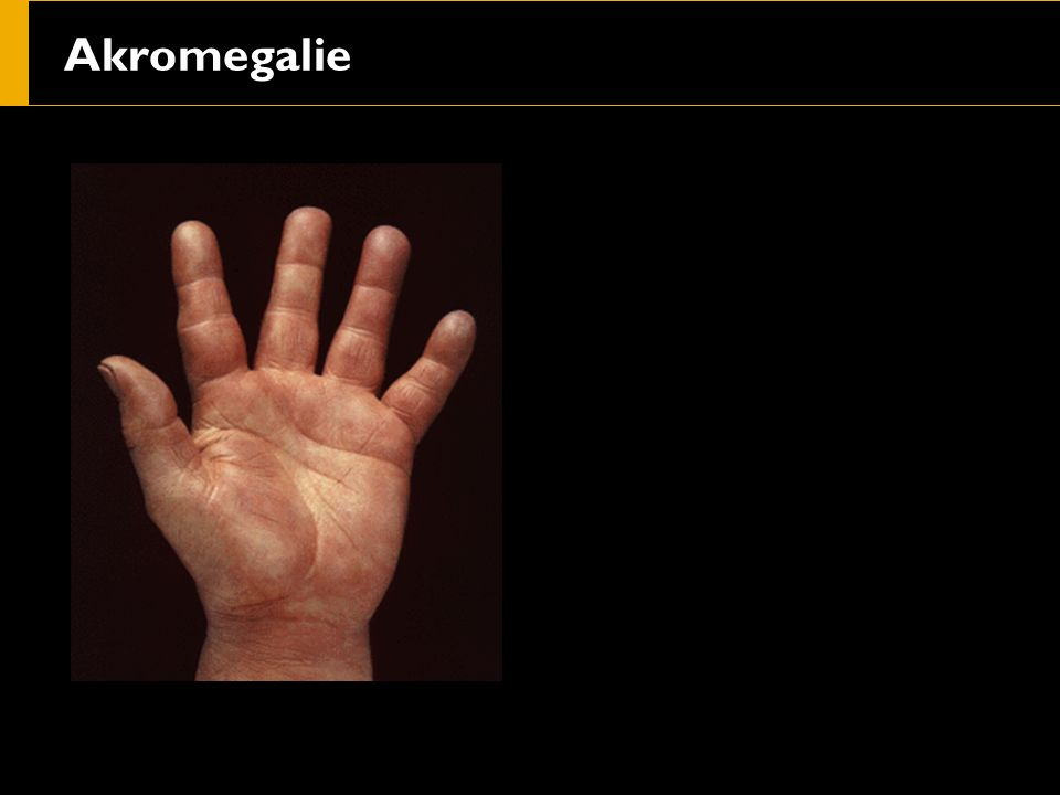 Dermatomyositis s rašem