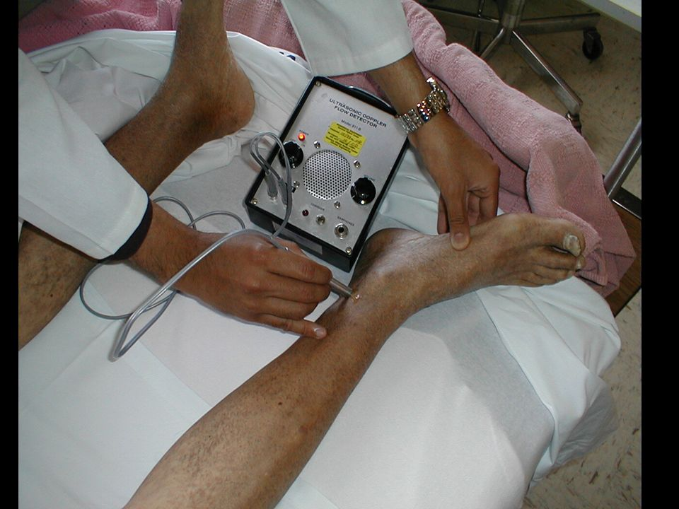 Ankle Brachial Index ABI: highly specific for leg artery stenosis > 50%, highly sensitive (95 %), takes 10 minutes, recommended in important guidelines (AHA/ACC 1, TASC II 2 etc.) 1 Hirsch AT Circulation 2006;113:463-654.