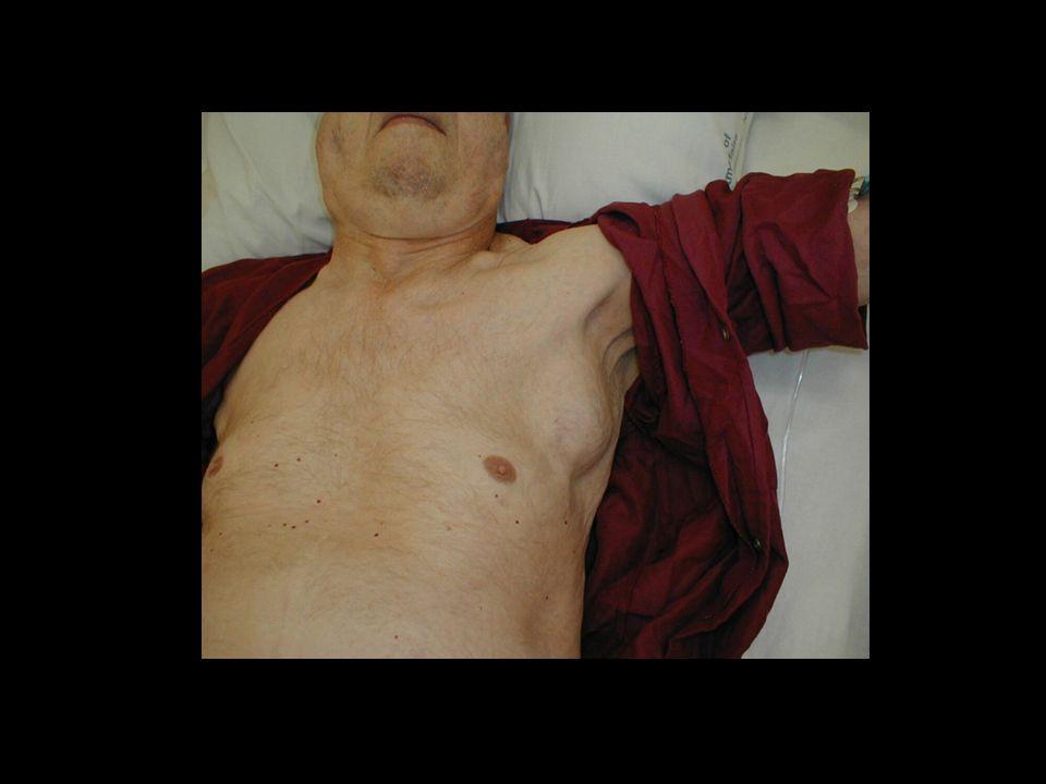 CMP  Náhlá porucha hybnosti nebo řeči  Podle trvání:  TIA do 24 hodin  dokonaný iktus nad 24 hodin  AKUTNÍ STAV