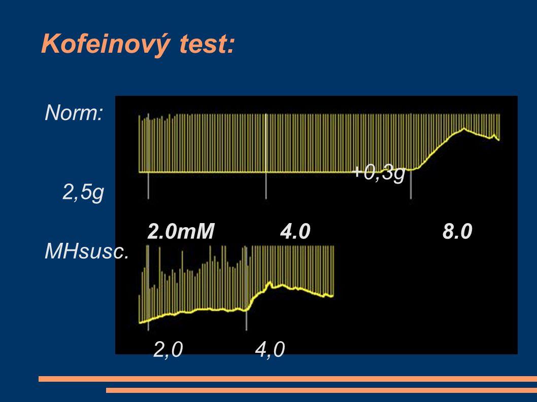 MH + Běžný plánovaný výkon: ● pracoviště s možností intenzivní péče ● Anesteziologická vizita:  pečlivá osobní a rodinná anamnéza  dostatečná anxiolytická premedikace ● Na OS dantrolen (bezprostředně 10 mg/kg).