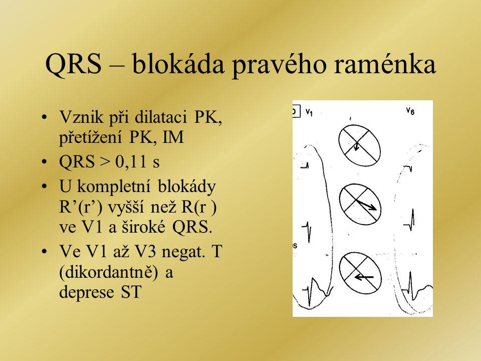 QRS – blokáda pravého raménka Vznik při dilataci PK, přetížení PK, IM QRS > 0,11 s U kompletní blokády R'(r') vyšší než R(r ) ve V1 a široké QRS.
