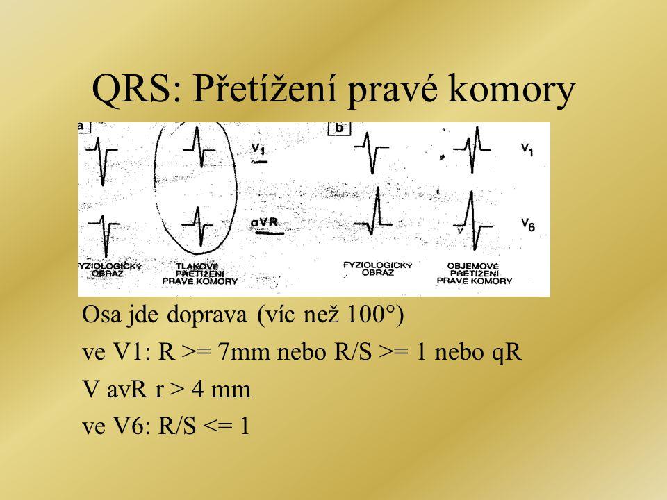 QRS: Přetížení pravé komory Osa jde doprava (víc než 100°) ve V1: R >= 7mm nebo R/S >= 1 nebo qR V avR r > 4 mm ve V6: R/S <= 1