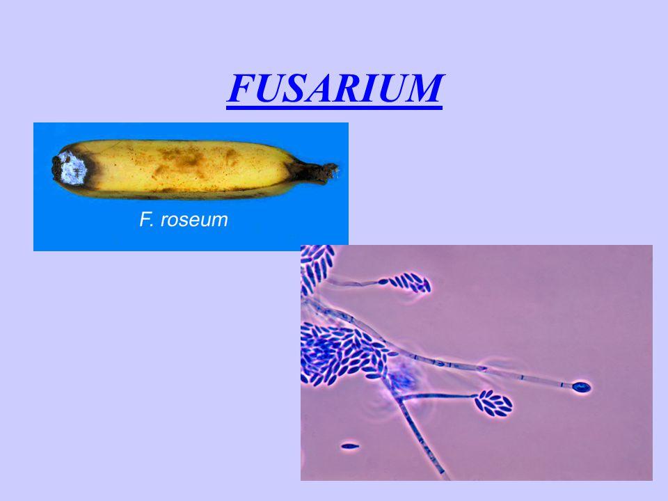 AFLATOXINY -silné karcinogeny (plísně A.flavus, A.