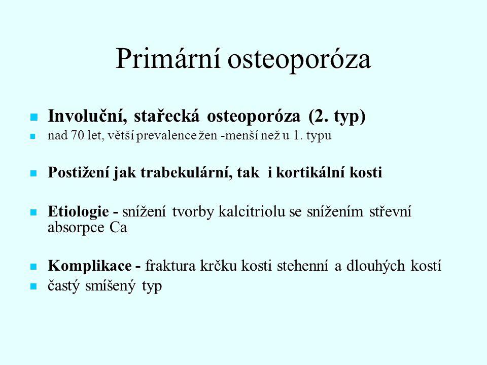 Sekundární osteoporóza, příčiny Endokrinní: Cushingův sy.