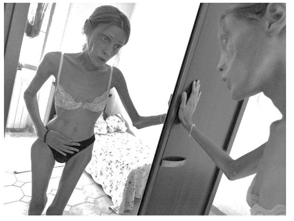 Jak extrémní průběh může anorexie mít, když není léčena, ukazuje tragický příběh dvojčat z Anglie, Samanthy a Michaely Kendallových.