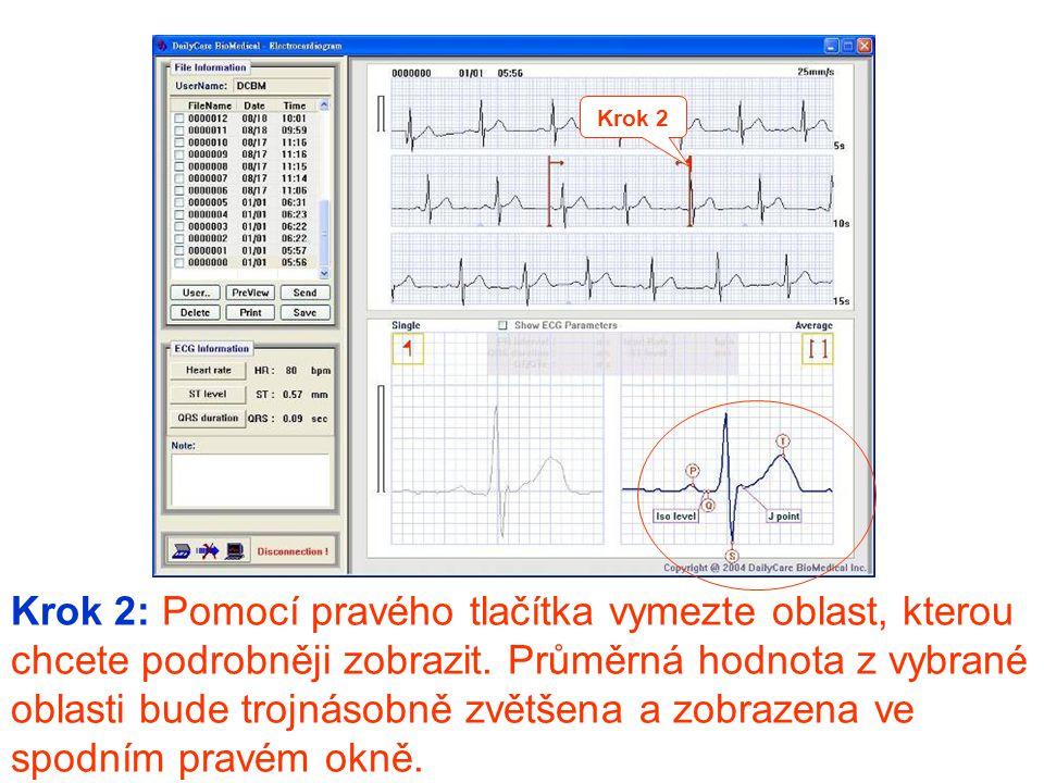 Krok 3: Levým tlačítkem klikněte na Show ECG Parameters , zobrazí se obdélník s vypočítanými EKG parametry: PR interval, QRS duration (délka), QT/QTc, heart rate (rychlost srdce) a ST level.