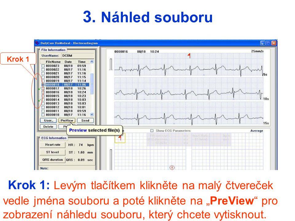 - Každá strana může obsahovat až 3 ECG soubory (záznamy) 1 2 3