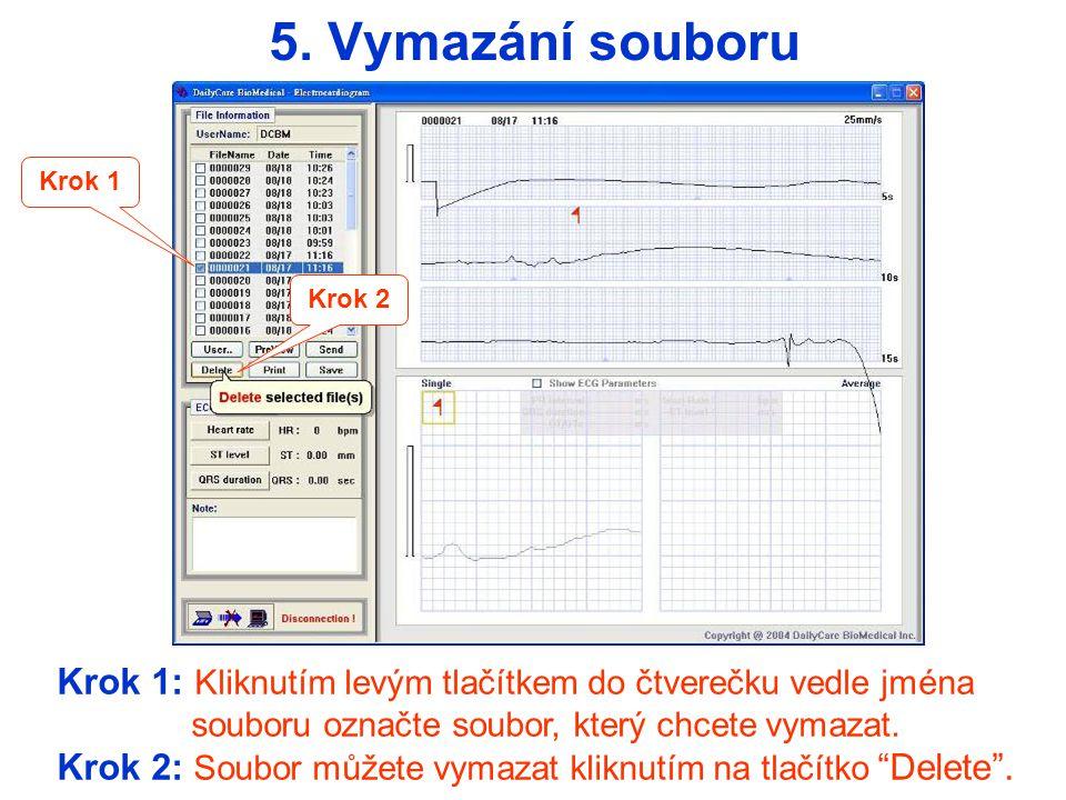 Krok 1: Kliknutím levým tlačítkem do čtverečku vedle jména souboru označte soubor, který chcete uložit.