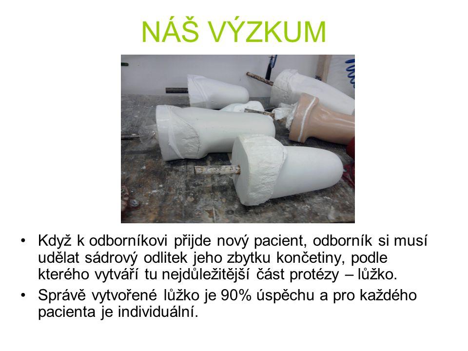 V PROTETICE Do Protetiky v Plzni jsme šli přesvědčení, jak mají všechno moderně a počítačově uzpůsobené, a tak nás překvapilo, že k tomu aby vytvořili protézu musí dělat namáhavě a zdlouhavě sádrové odlitky.