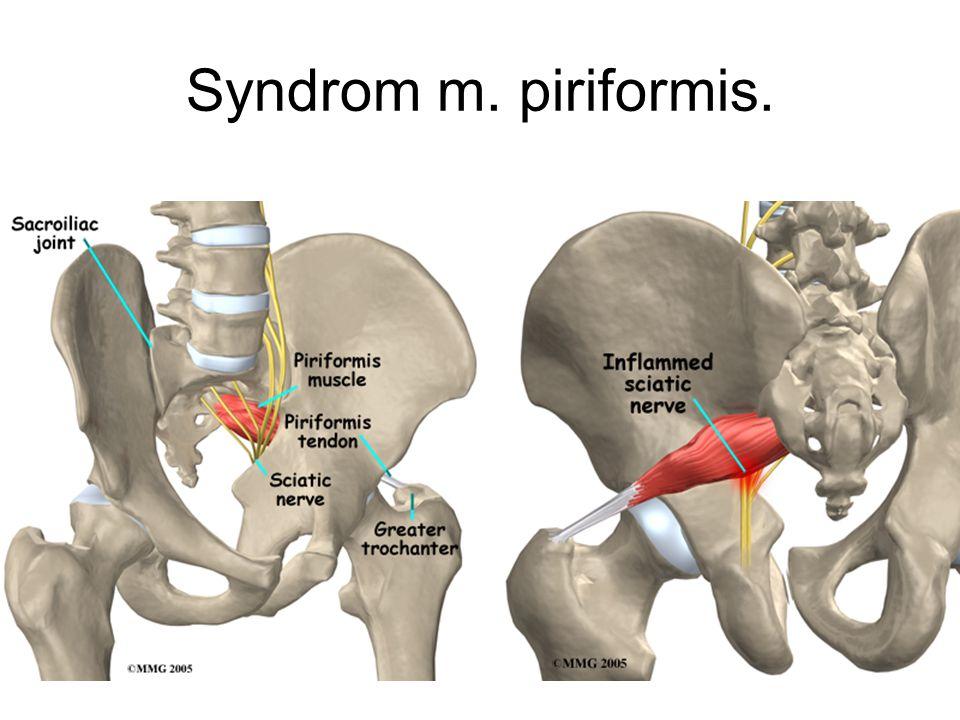 Poruchy pánevního kruhu.SI dysfunkce. svalový vzorec SI kloubu ve spasmu : m.