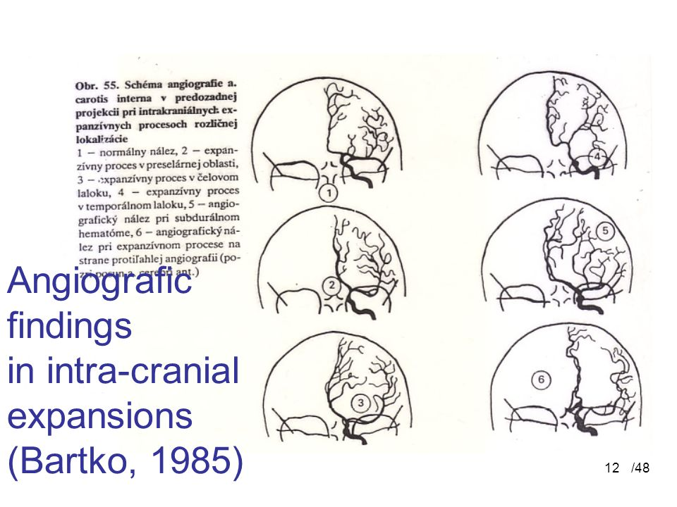 Angiografic findings in intra-cranial expansions (Bartko, 1985)