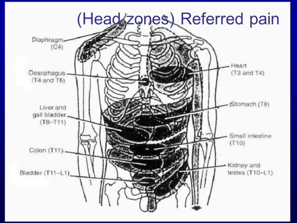 (Head zones) Referred pain