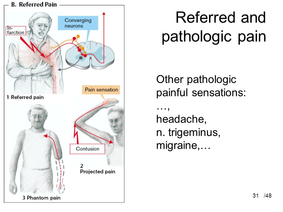 Referred and pathologic pain