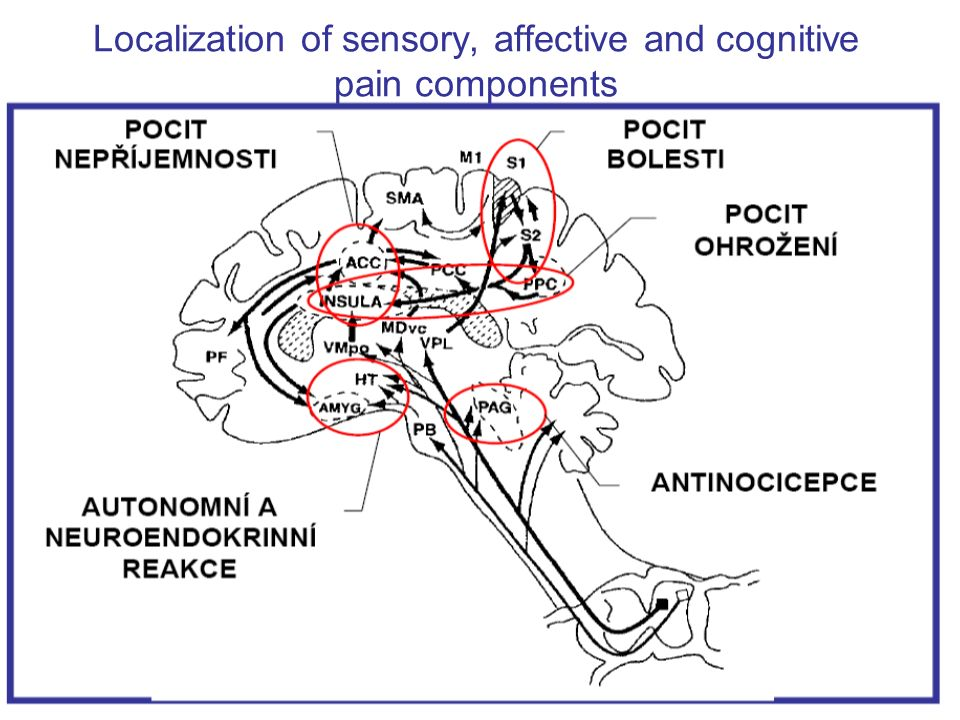 Localization of sensory, affective and cognitive pain components