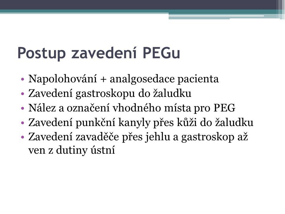 Postup zavedení PEGu Napolohování + analgosedace pacienta