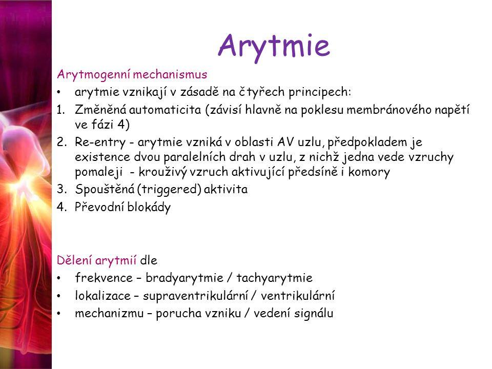 Arytmie Arytmogenní mechanismus