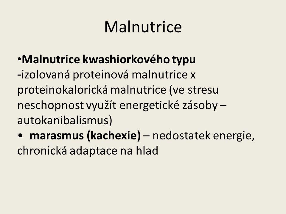Malnutrice Malnutrice kwashiorkového typu