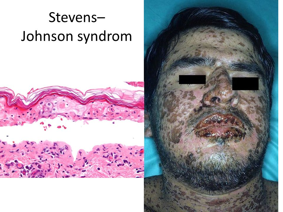 Stevens– Johnson syndrom