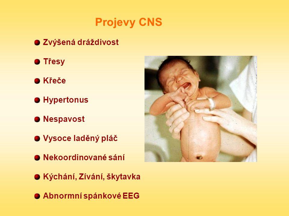 Projevy CNS Zvýšená dráždivost Třesy Křeče Hypertonus Nespavost