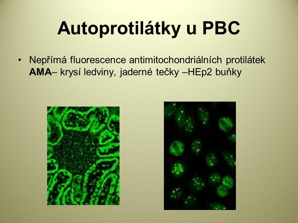 Autoprotilátky u PBC Nepřímá fluorescence antimitochondriálních protilátek AMA– krysí ledviny, jaderné tečky –HEp2 buňky.