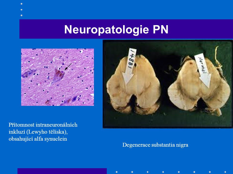 Neuropatologie PN Přítomnost intraneuronálních inkluzí (Lewyho tělíska), obsahující alfa synuclein.
