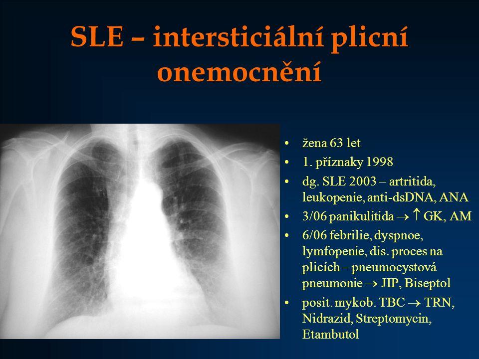 SLE – intersticiální plicní onemocnění