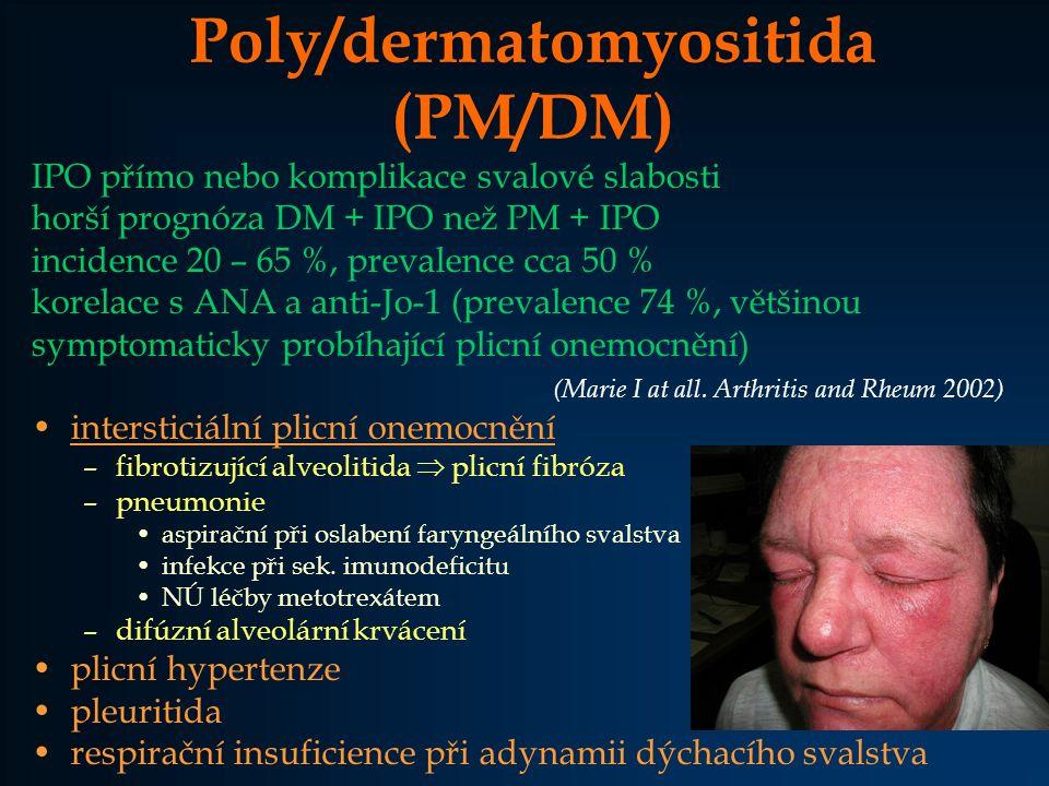 Poly/dermatomyositida (PM/DM)