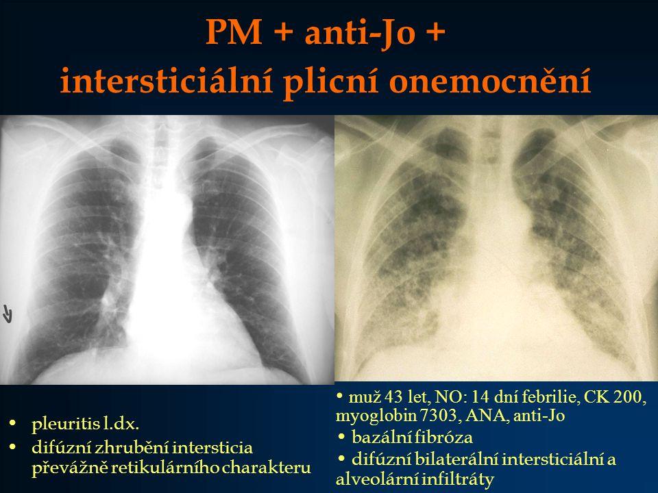 intersticiální plicní onemocnění