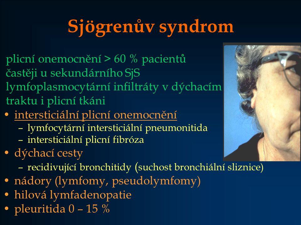 Sjögrenův syndrom plicní onemocnění > 60 % pacientů