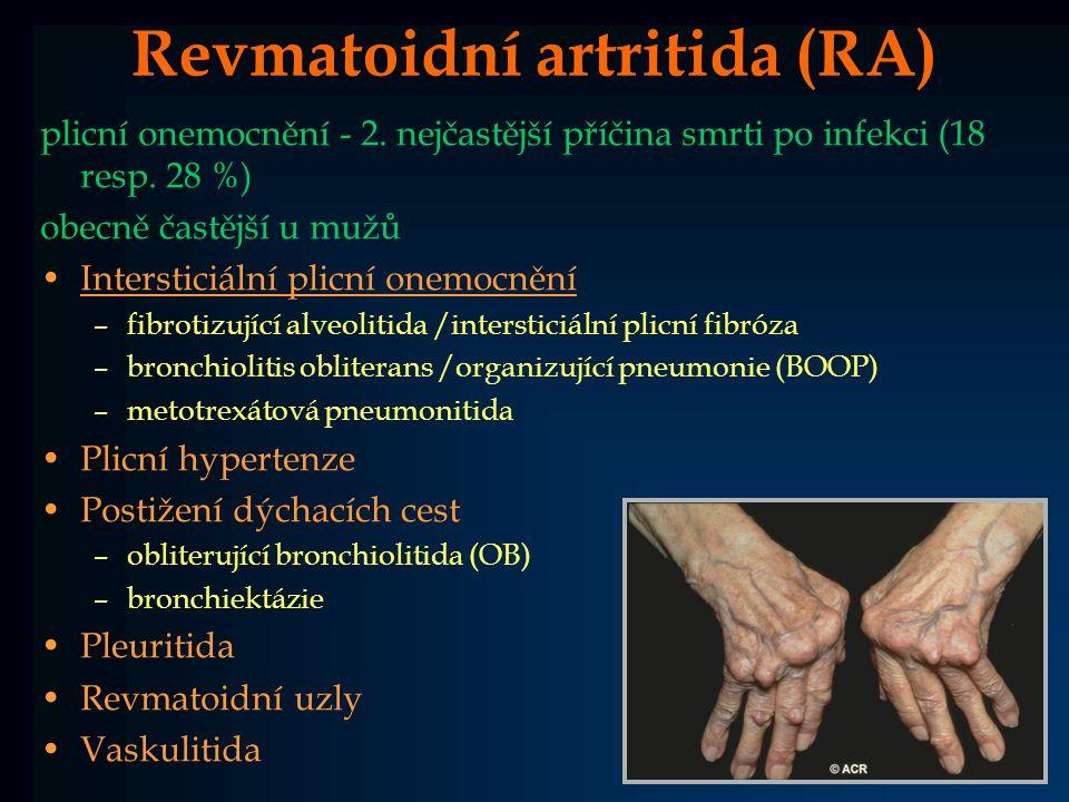 Revmatoidní artritida (RA)