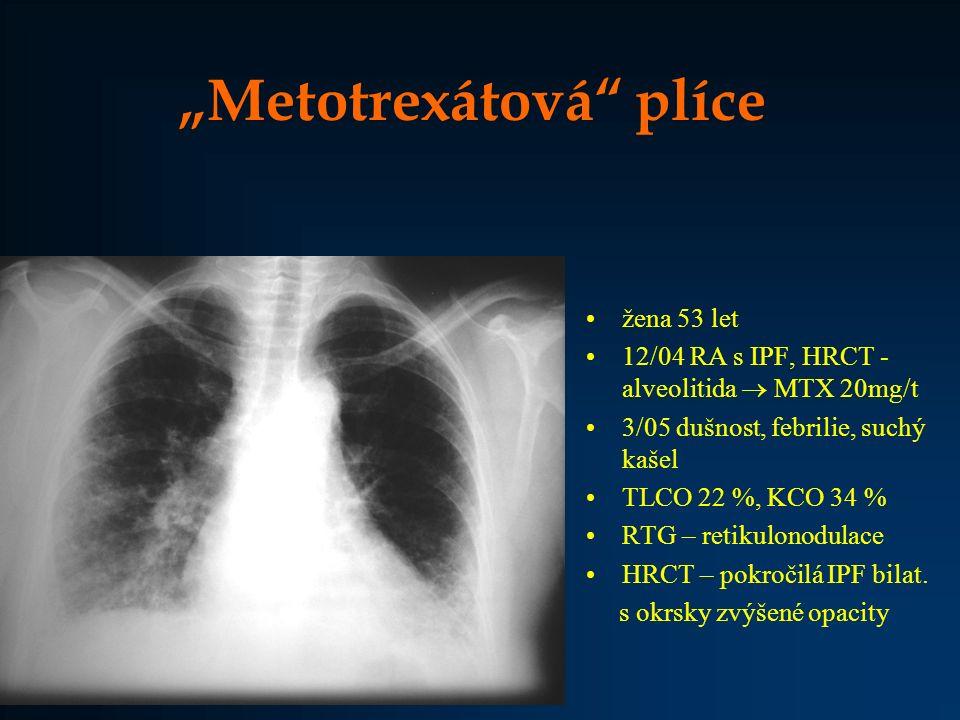 """""""Metotrexátová plíce"""