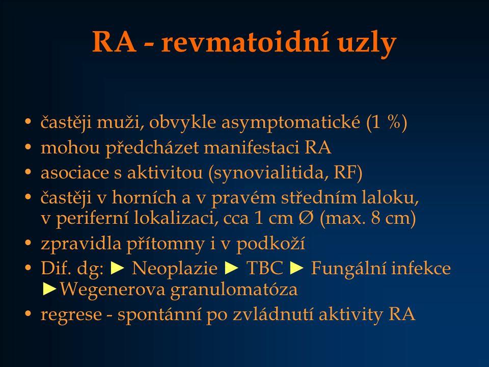 RA - revmatoidní uzly častěji muži, obvykle asymptomatické (1 %)