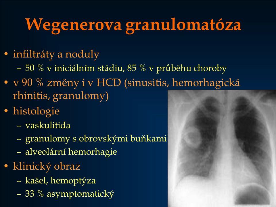Wegenerova granulomatóza