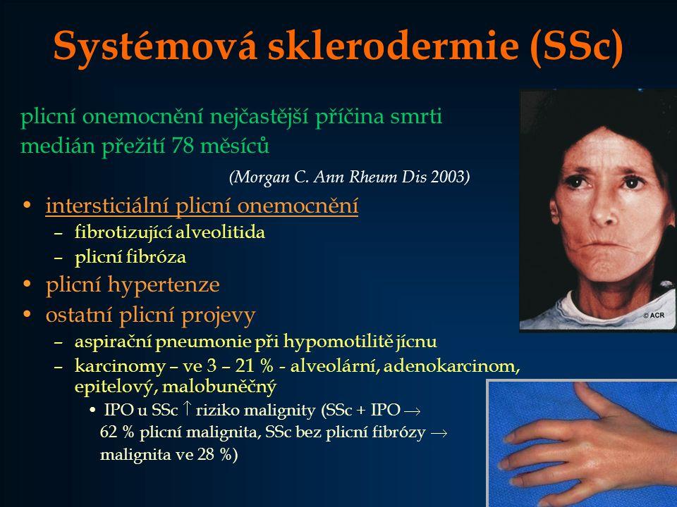 Systémová sklerodermie (SSc)