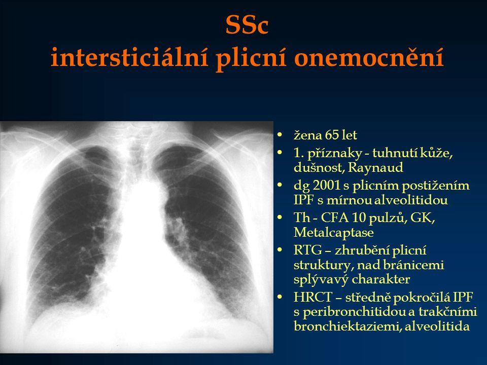 SSc intersticiální plicní onemocnění