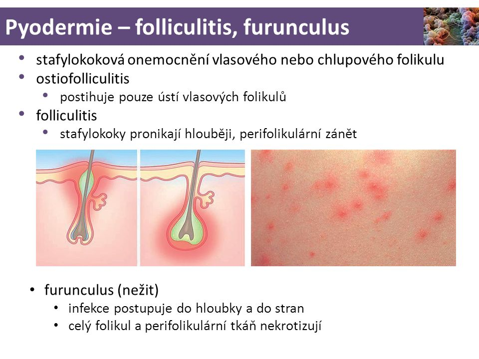 Pyodermie – folliculitis, furunculus
