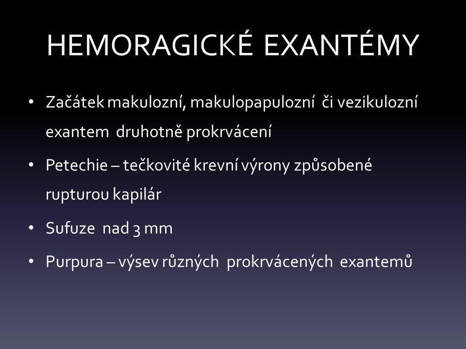 HEMORAGICKÉ EXANTÉMY Začátek makulozní, makulopapulozní či vezikulozní exantem druhotně prokrvácení.