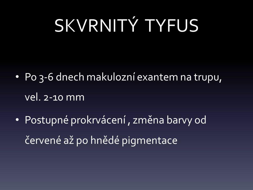 SKVRNITÝ TYFUS Po 3-6 dnech makulozní exantem na trupu, vel. 2-10 mm