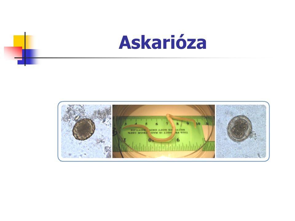 Askarióza