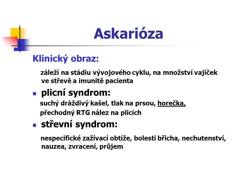 Askarióza Klinický obraz: