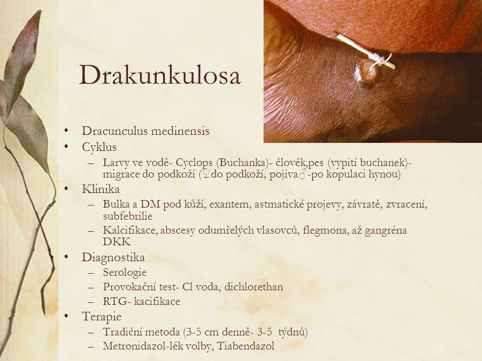 Drakunkulosa Dracunculus medinensis Cyklus Klinika Diagnostika Terapie