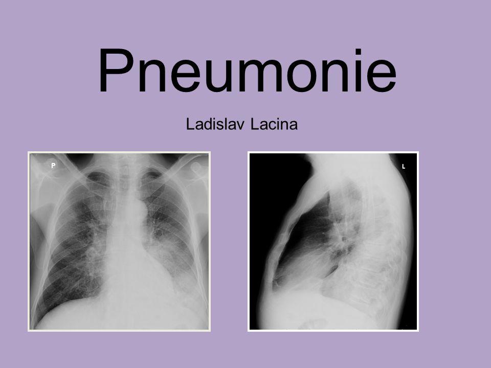 Pneumonie Ladislav Lacina