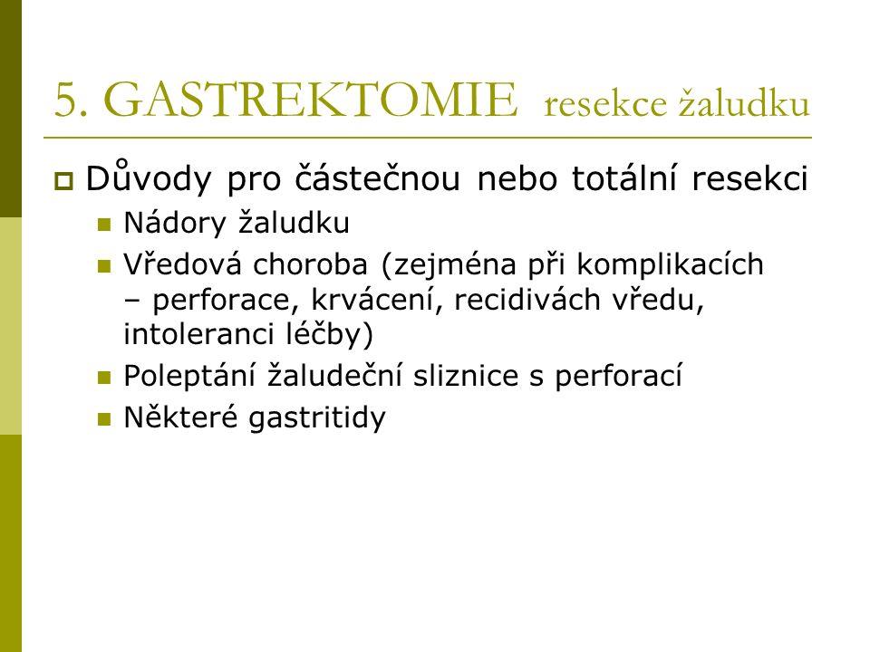 5. GASTREKTOMIE resekce žaludku