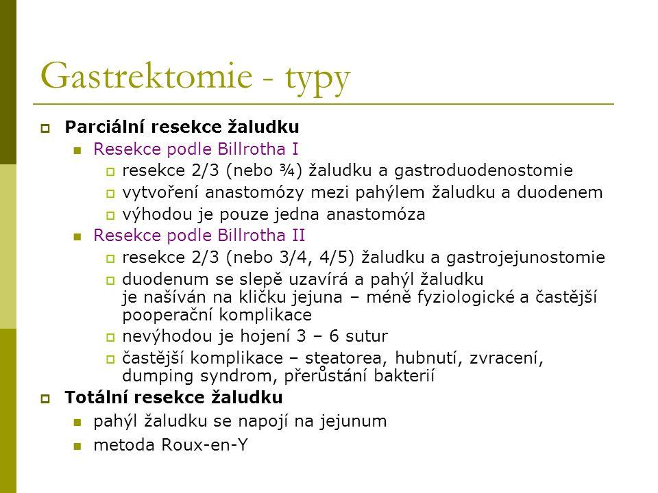Gastrektomie - typy Parciální resekce žaludku