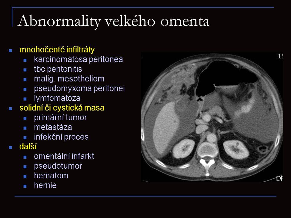Abnormality velkého omenta