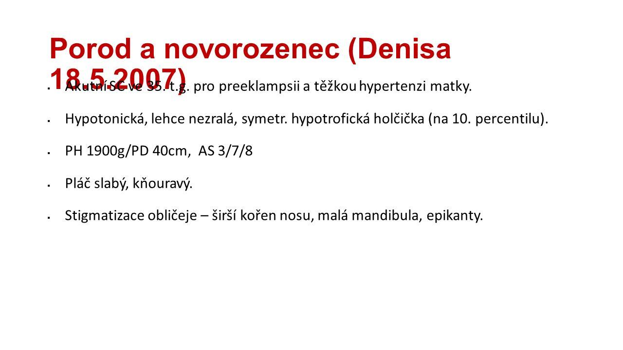 Porod a novorozenec (Denisa 18.5.2007)