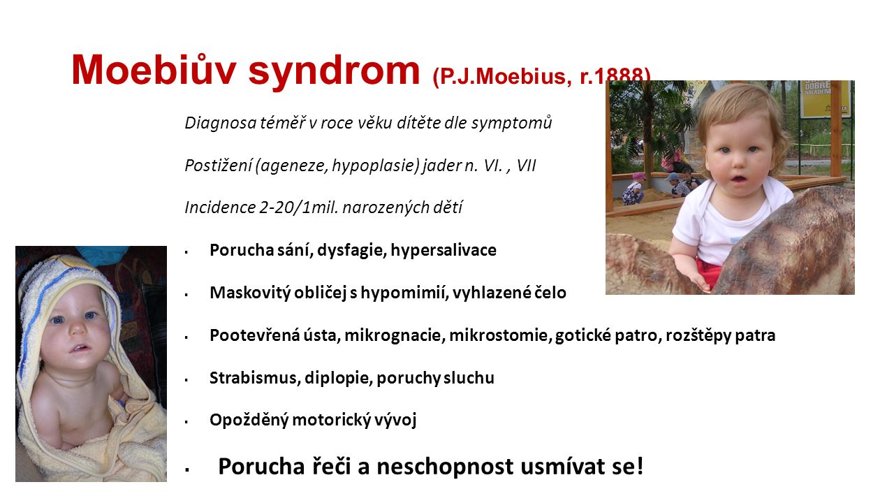 Moebiův syndrom (P.J.Moebius, r.1888)