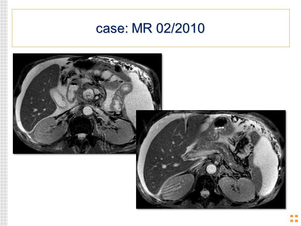 case: MR 02/2010