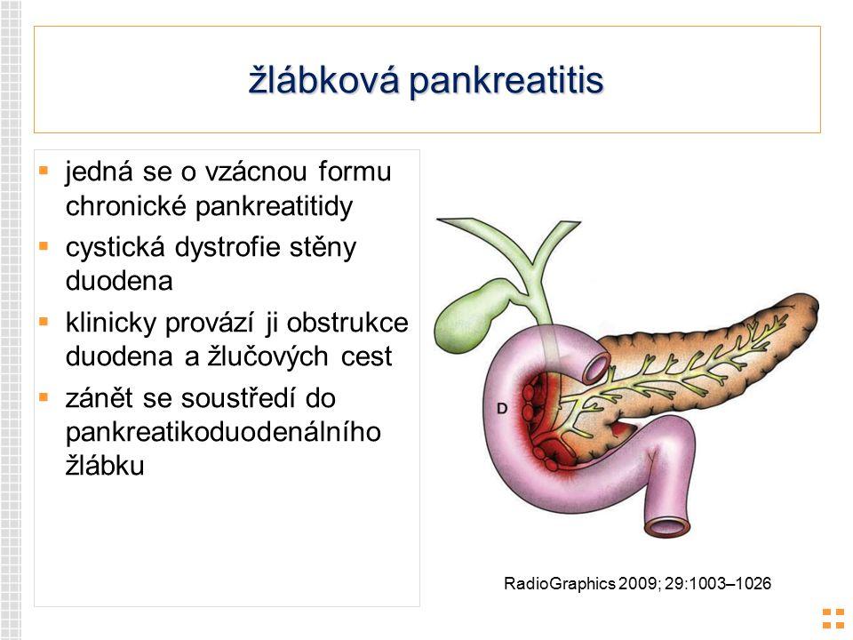 žlábková pankreatitis