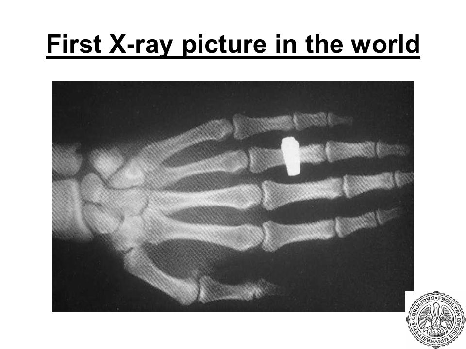 First X-ray picture in the world